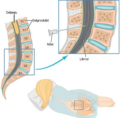 lumb1